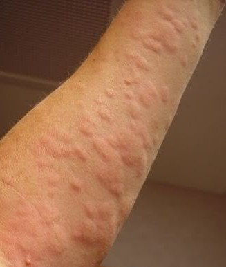 Red Itchy Bumps on Legs | Med-Health.net